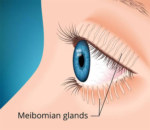 Intraductal Meibomian Gland Probing