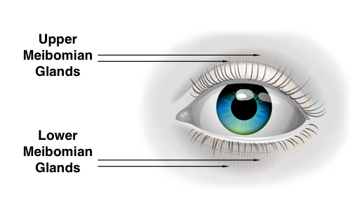 Meibomian Gland Expression