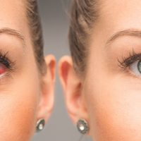 home-remedies-for-dry-eye-first-eye-care