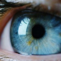 what-activities-should-be-avoided-after-cataract-surgery